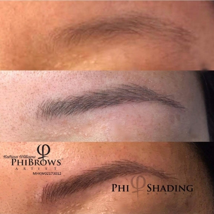 left brow before and after